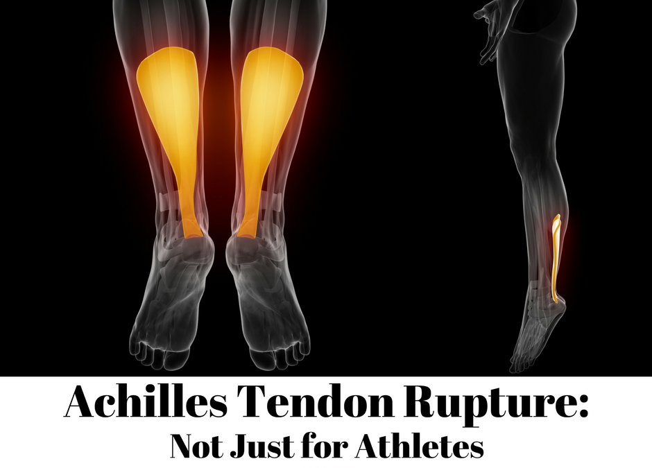 Achilles Tendon Rupture…Not Just for Athletes